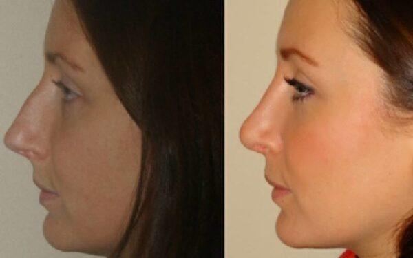 nose job uk 800x500 1 - لیفت بینی با چسب و مزایای منحصر به فردش